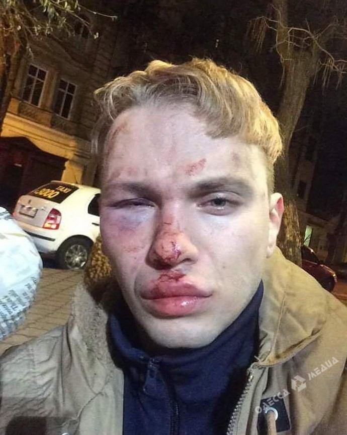 ВОдессе избили иограбили участника «Голос країни»