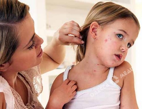 ВОдессе нет эпидемии кори, однако  непривитых детей невозьмут вдетсад