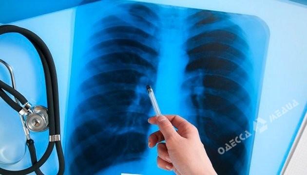 ВОдесской области больная туберкулёзом доктор проводила обследование детей