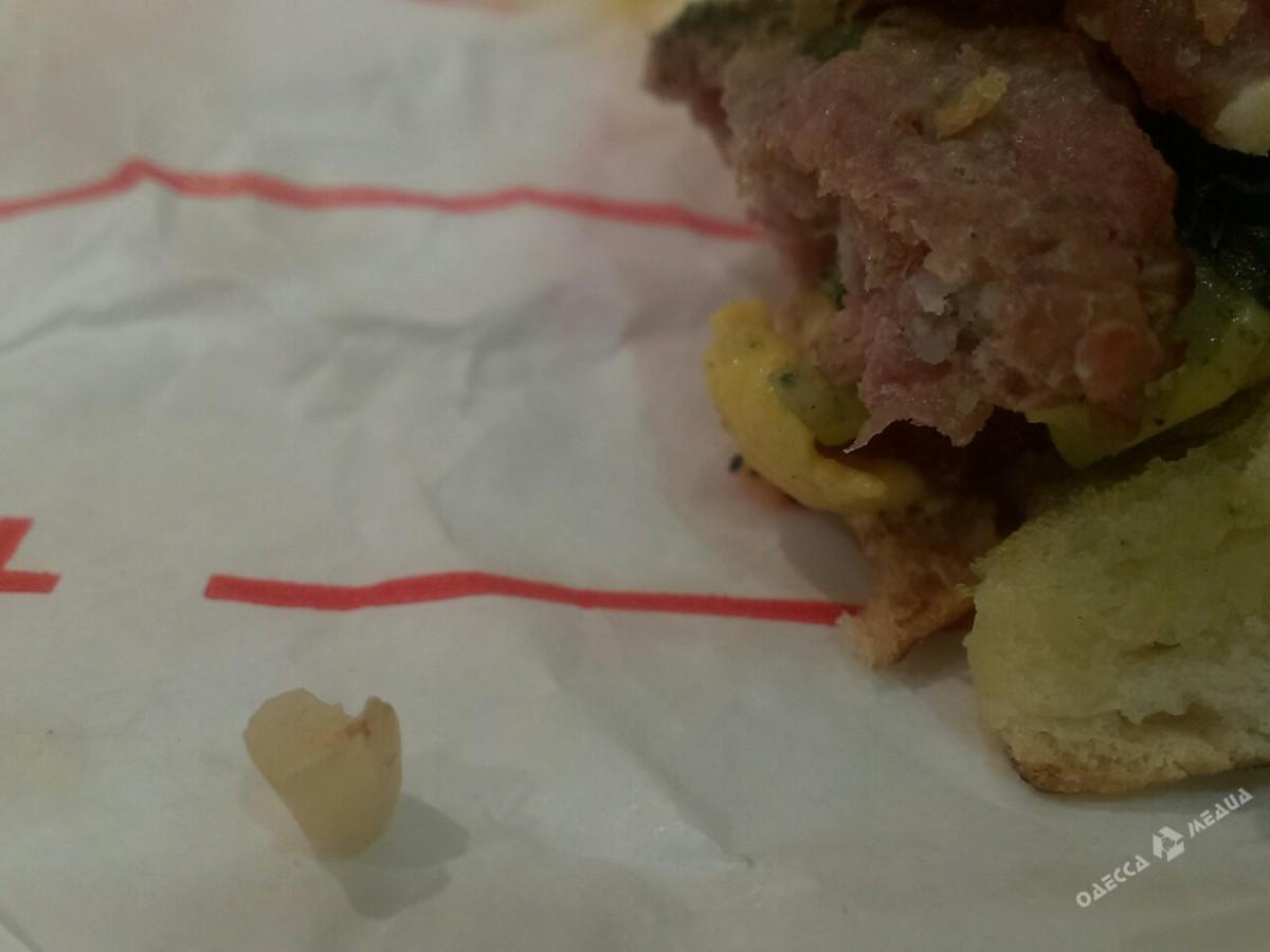 18f4825e3fcf9263afdd36eb2c7742d2 Одесситы нашли в заказанном гамбургере детский зуб (ФОТО)